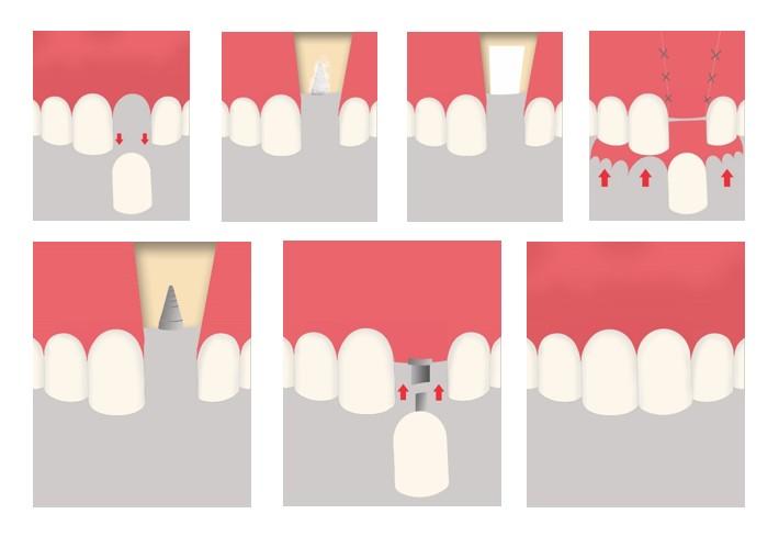 ROG : regeneration osseuse guidee