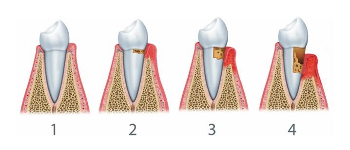 traitement maladies parodontales